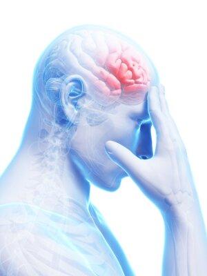Fototapeta 3d świadczonych koncepcyjne ilustracji ból głowy