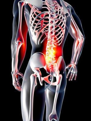 Fototapeta Anatomia - ból pleców