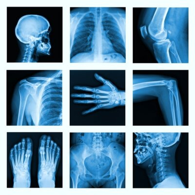 Fototapeta Collage of many X-rays in very good quality.