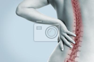 Fototapeta Frau mit schmerzen in der Wirbelsäule