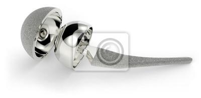 Fototapeta Implant stawu biodrowego