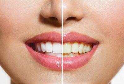 Fototapeta Kobieta zębów przed i po Whitening. Higiena jamy ustnej