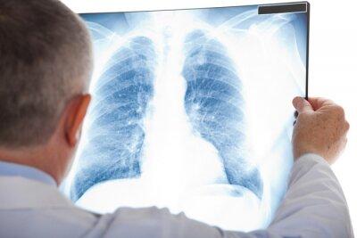 Fototapeta Lekarz bada radiografii płuc