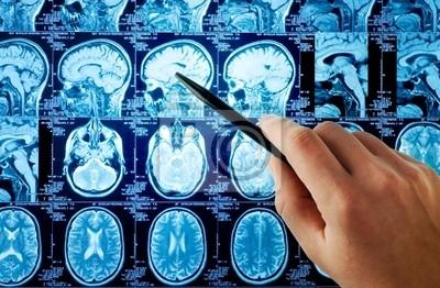 MRI mózgu