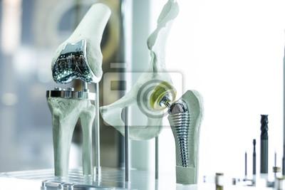 Fototapeta Nowoczesne protezy kolana i biodra przez cad inżyniera i produkowane przez Drukowanie 3D