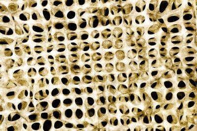Fototapeta Osteoporoza - 3d render