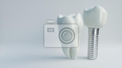 Fototapeta Tooth human implant - 3D Rendering