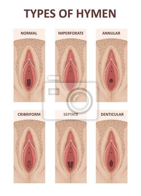 Fototapeta Types of Hymens. Female anatomy vagina