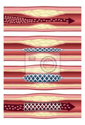 Wszczepienie stentu w tętnicy w czterech krokach