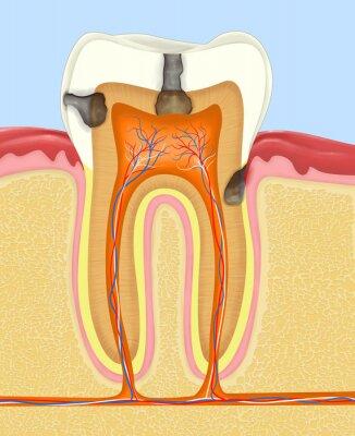 Fototapeta Ząb człowieka próchnicowy