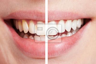 Zęby przed i po wybielanie