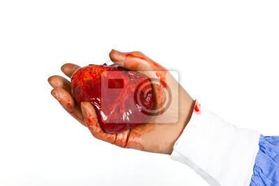 Bloody serce gotowe do przeszczepu