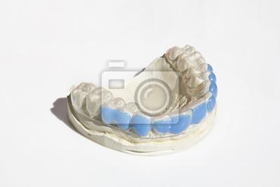 Calco w GESSO dei denti con mascherina w silikonie
