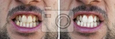Naklejka Prima e dopo lo sbiancamento dei denti