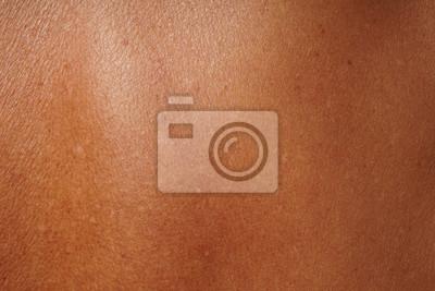 Naklejka zbliżenie ludzkiej skóry uszkodzonej przez wiek i opalanie