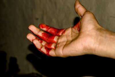 Obraz a badly bleeding hand and dark background