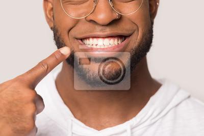 Obraz Close up of biracial man show white healthy teeth