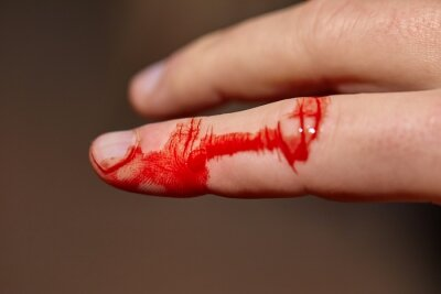 Obraz Finger cut and bleeding skin index finger on hand, in need of a plaster