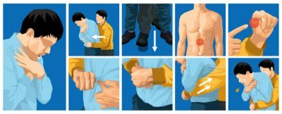 Obraz Heimlich maneuver vector illustration. first aid to choking for adults.