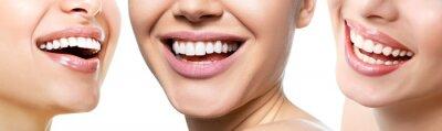 Obraz Piękny szeroki uśmiech młodych świeżych kobiet z wielkimi zdrowymi białymi zębami, odizolowywający nad białym tłem. Uśmiechnięte szczęśliwe kobiety. Śmiejąc się kobiece usta. Zębów zdrowia, wybielania