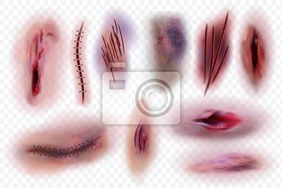 Obraz Realistyczne blizny. Rana, szwy chirurgiczne i siniaki, skaleczenia skóry. Krwawe rany wektor na białym tle zestaw. Ilustracja zadrapania chirurgicznego, rany i szwu