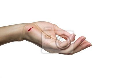 Obraz ręka z nacięciem