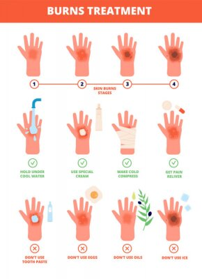 Obraz Skin burn. Burned hand treating, protection burns. First aid and treatment, stages of burning. Flat vector medical treat illustration. Degree burning burnout skin hand, damage and medical care