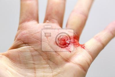 Obraz Zbliżenie krwawiącego cięcia dłoni z drobnymi odłamkami szkła.