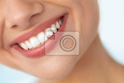 Obraz Zbliżenie piękne uśmiech z białymi zębami. Kobieta Usta Uśmiechem. Wysoka rozdzielczość obrazu