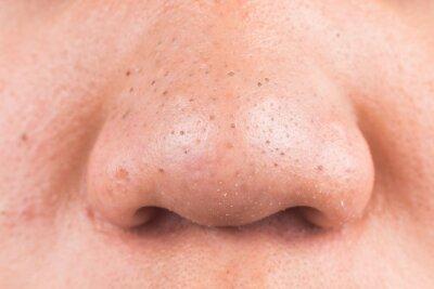 Plakat Close-up Of Man Nose