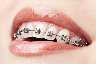 Plakat zęby z szelkami