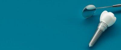 Tapeta Close-up Of Dental Implant Against Blue Background